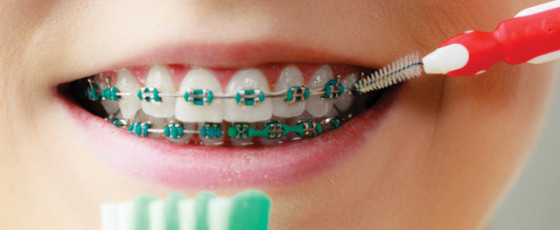 Your Guide to Getting Braces