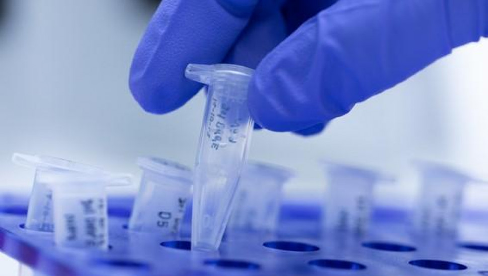 Permission granted to conduct Rapid Antigen tests