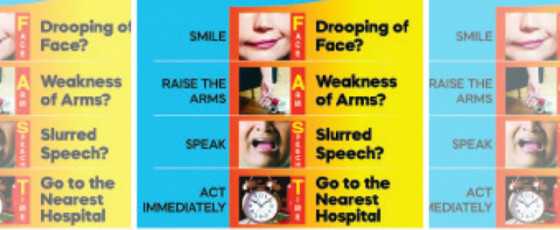 Immediate Action Can Prevent Strokes
