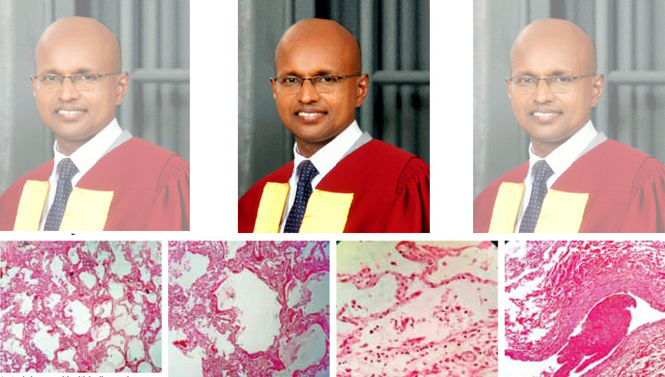 Lung Pathology – Sri Lankan Experience of COVID-19